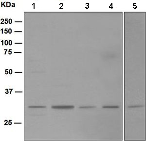 Western blot - Nucleoside phosphorylase antibody [EPR5715] (ab109447)