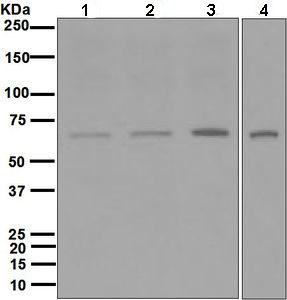 Western blot - PMP70 antibody [EPR5614] (ab109448)