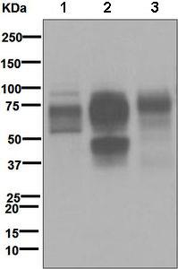 Western blot - FCGR1A antibody [EPR4623] (ab109449)