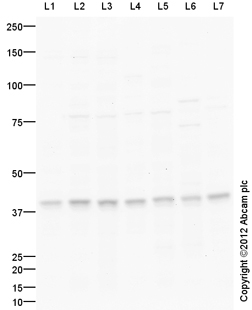Western blot - Anti-MAT2B antibody (ab109484)