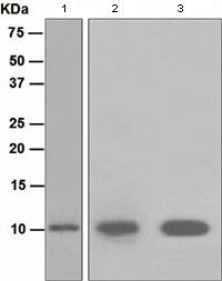Western blot - S100 alpha 2 antibody [EPR5392] (ab109494)