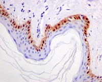 Immunohistochemistry (Formalin/PFA-fixed paraffin-embedded sections) - S100 alpha 2 antibody [EPR5392] (ab109494)