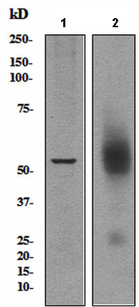 Western blot - Somatostatin Receptor 5 antibody [UMB4] (ab109495)