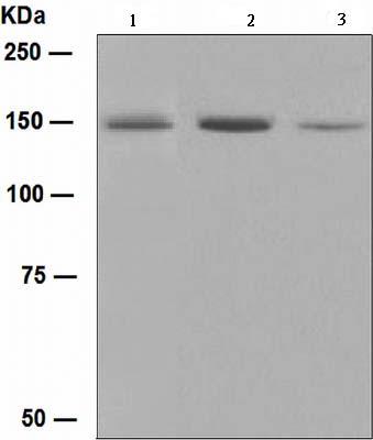 Western blot - Phospholipase C gamma 1 antibody [EPR5358] (ab109501)