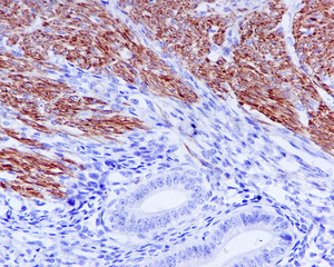 Immunohistochemistry (Formalin/PFA-fixed paraffin-embedded sections) - Tropomyosin 1 (alpha) antibody [EPR5158] (ab109505)