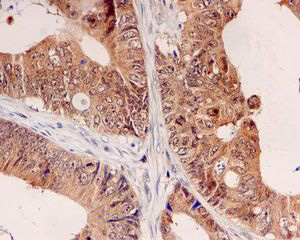 Immunohistochemistry (Formalin/PFA-fixed paraffin-embedded sections) - UBE2M antibody [EPR5333] (ab109507)