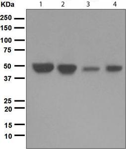 Western blot - IKB beta antibody [EPR5037] (ab109509)