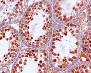 Immunohistochemistry (Formalin/PFA-fixed paraffin-embedded sections) - OS9 antibody [EPR4272(2)] (ab109510)