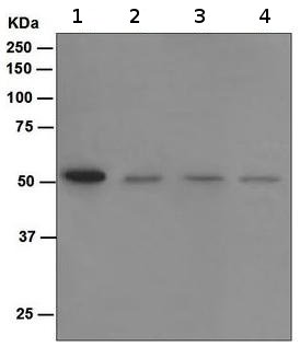 Western blot - SPHK1 antibody [EPR4293(2)] (ab109522)