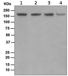 Western blot - Topoisomerase II beta antibody [EPR5377] (ab109524)