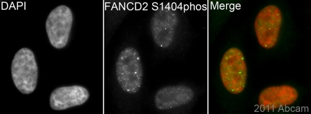Immunocytochemistry/ Immunofluorescence - Anti-FANCD2 (phospho S1404) antibody [EPR2278(2)] (ab109542)