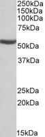 Western blot - ALDH6A1 antibody (ab109576)