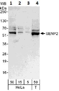 Western blot - SENP2 antibody (ab109590)
