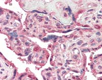 Immunohistochemistry (Formalin/PFA-fixed paraffin-embedded sections) - PEN2 antibody (ab109619)