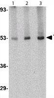 Western blot - CRLF2 antibody (ab109626)