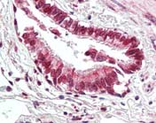 Immunohistochemistry (Formalin/PFA-fixed paraffin-embedded sections) - Beclin 1 antibody (ab109631)