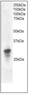 Western blot - GRB2 antibody (ab109651)