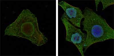 Immunocytochemistry/ Immunofluorescence - B Raf antibody [1H12] (ab109688)