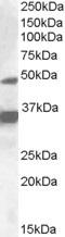 Western blot - PXR antibody (ab109728)