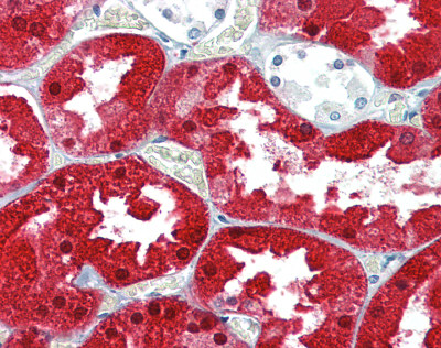 Immunohistochemistry (Formalin/PFA-fixed paraffin-embedded sections) - ASS1 antibody (ab109753)