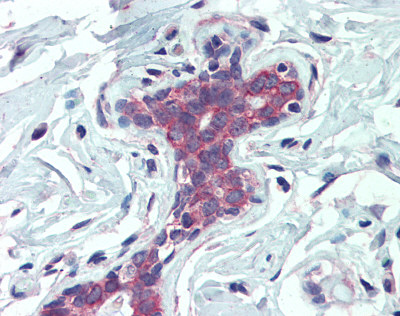 Immunohistochemistry (Formalin/PFA-fixed paraffin-embedded sections) - EPB4IL2 antibody (ab109754)