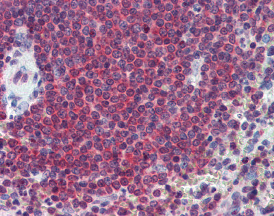 Immunohistochemistry (Formalin/PFA-fixed paraffin-embedded sections) - Carbonic Anhydrase I antibody (ab109755)