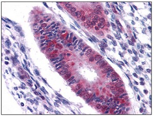 Immunohistochemistry (Formalin/PFA-fixed paraffin-embedded sections) - DDX5 antibody (ab109764)