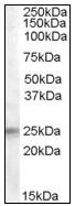Western blot - IGFBP6 antibody (ab109765)