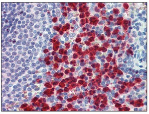 Immunohistochemistry (Formalin/PFA-fixed paraffin-embedded sections) - Cell adhesion molecule 4 antibody (ab109767)