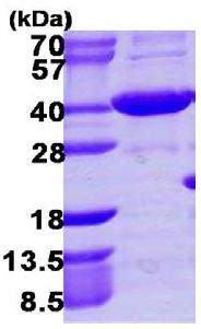 SDS-PAGE - HSD3a protein (His tag) (ab109831)