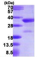 SDS-PAGE - VPS24 protein (ab109845)