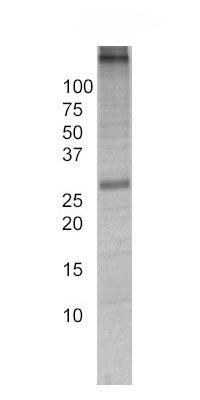 Immunoprecipitation - Adenine Nucleotide Translocase Immunocapture antibody [5F51BB5AG7] (ab109864)