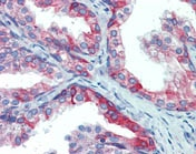 Immunohistochemistry (Formalin/PFA-fixed paraffin-embedded sections) - ERp72 antibody (ab109869)