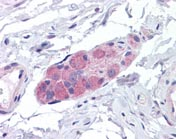 Immunohistochemistry (Formalin/PFA-fixed paraffin-embedded sections) - C2orf24 antibody (ab109871)