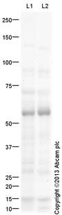 Western blot - Anti-GALNT1 antibody (ab109918)