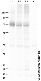 Western blot - Anti-alpha 3 Sodium Potassium ATPase antibody (ab109920)