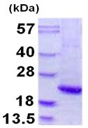 SDS-PAGE - Alpha 1 Acid Glycoprotein protein (ab109931)