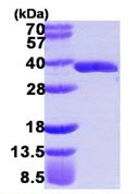 SDS-PAGE - GLOD4 protein (ab109939)