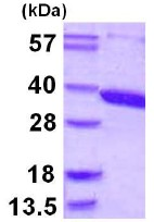 SDS-PAGE - ACY3 protein (ab109954)