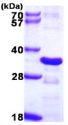 SDS-PAGE - CHMP2B protein (ab109959)
