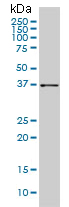 Western blot - AKR1B10 antibody [1A6] (ab109998)
