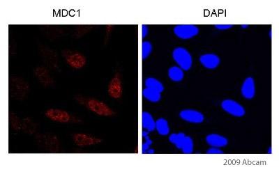 Immunocytochemistry/ Immunofluorescence - MDC1 antibody (ab11169)