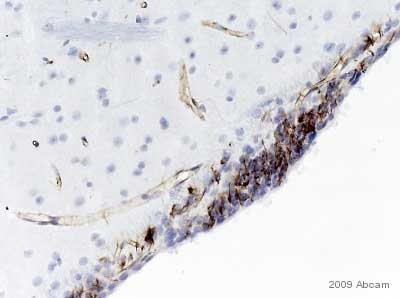 Immunohistochemistry (Formalin/PFA-fixed paraffin-embedded sections) - Nestin antibody [401] - Neural Stem Cell Marker (ab11306)