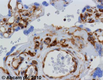Immunohistochemistry (Formalin/PFA-fixed paraffin-embedded sections)-beta I Tubulin antibody [SAP.4G5](ab11312)