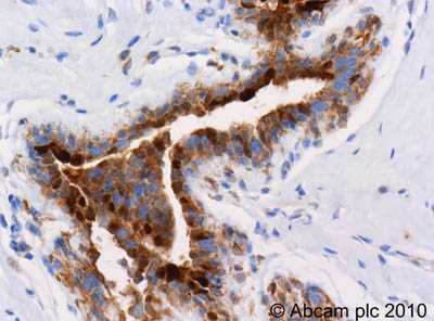 Immunohistochemistry (Formalin/PFA-fixed paraffin-embedded sections)-S100 alpha antibody(ab11428)