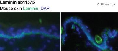 Immunohistochemistry (Frozen sections) - Laminin antibody (ab11575)
