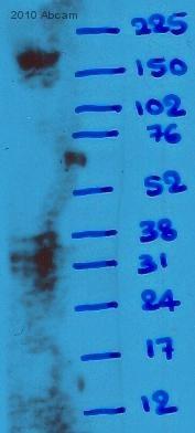 Western blot - alpha 1 Spectrin antibody [17C7] (ab11751)