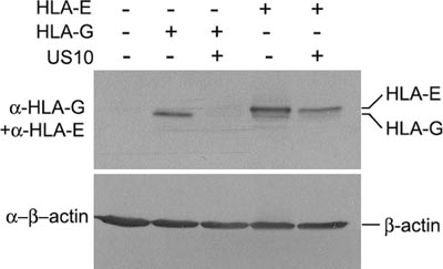 Western blot - HLA E antibody [MEM-E/07] (ab11820)