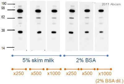 Western blot - C3 / C3a antibody [474] (ab11872)