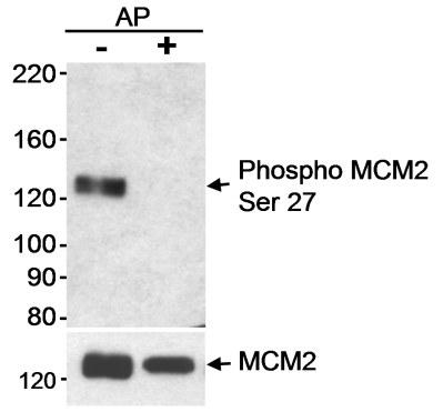 Western blot - MCM2 (phospho S27) antibody (ab11896)
